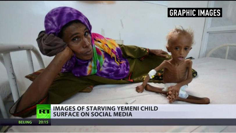 УН: Око 14 милиона цивила у Јемену могло бити суочено са смрћу од глади